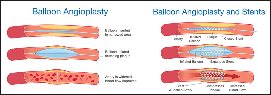 Coronary Angioplasty and Stent