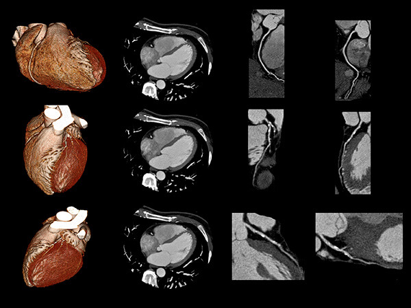 Cardiac CT Scan